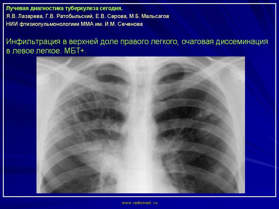 Туберкулёз Дифференциальная диагностика при легочном инфильтрате  1 1 ip slayd27 jpg