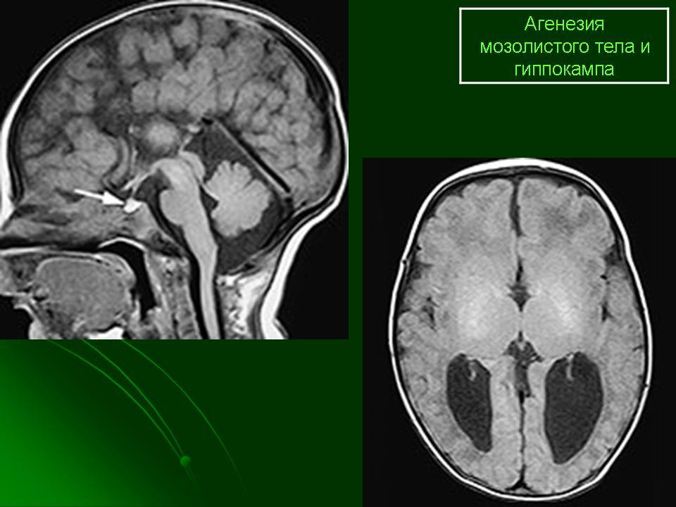 Синдром лиссэнцефалии Миллера — Дикера фото