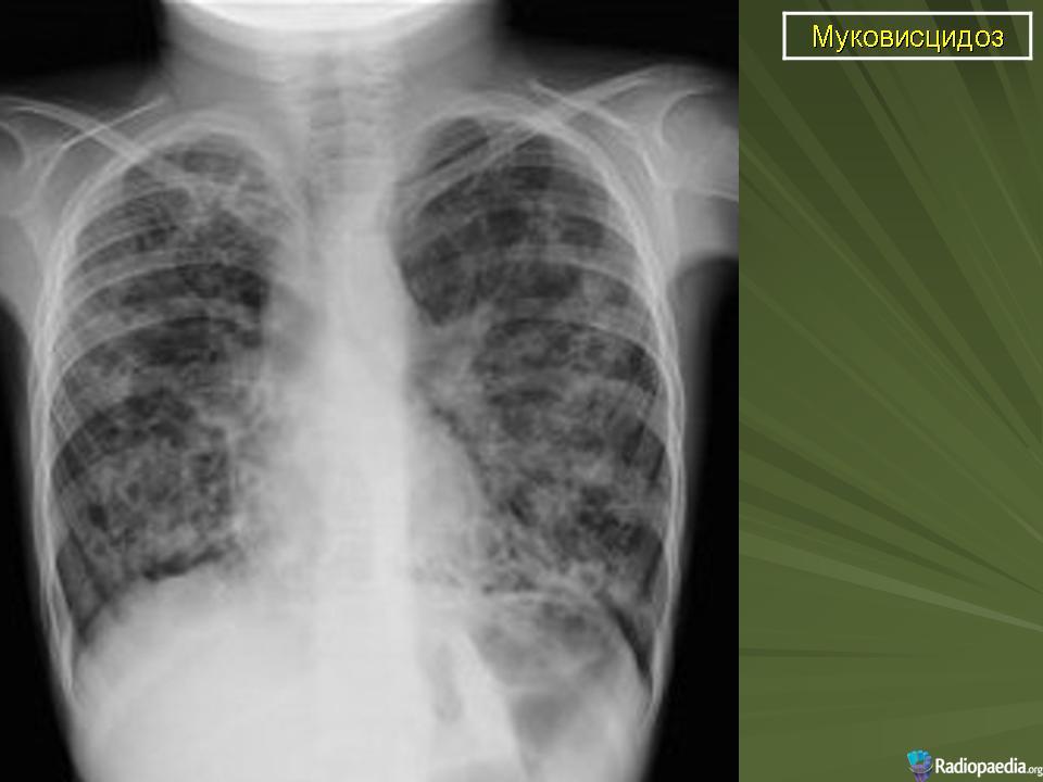 аллергия дерматит мкб