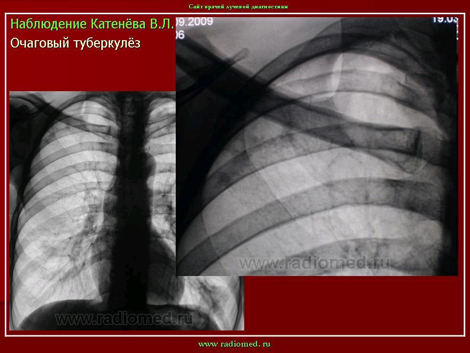 Фтизиатрия реферат на тему туберкулез мужских половых органов На этой странице собраны материалы по запросу фтизиатрия реферат на тему туберкулез мужских половых органов