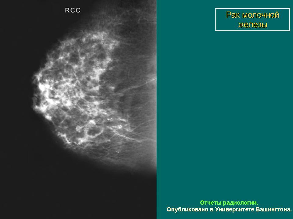 протокол маммографии образец - фото 3