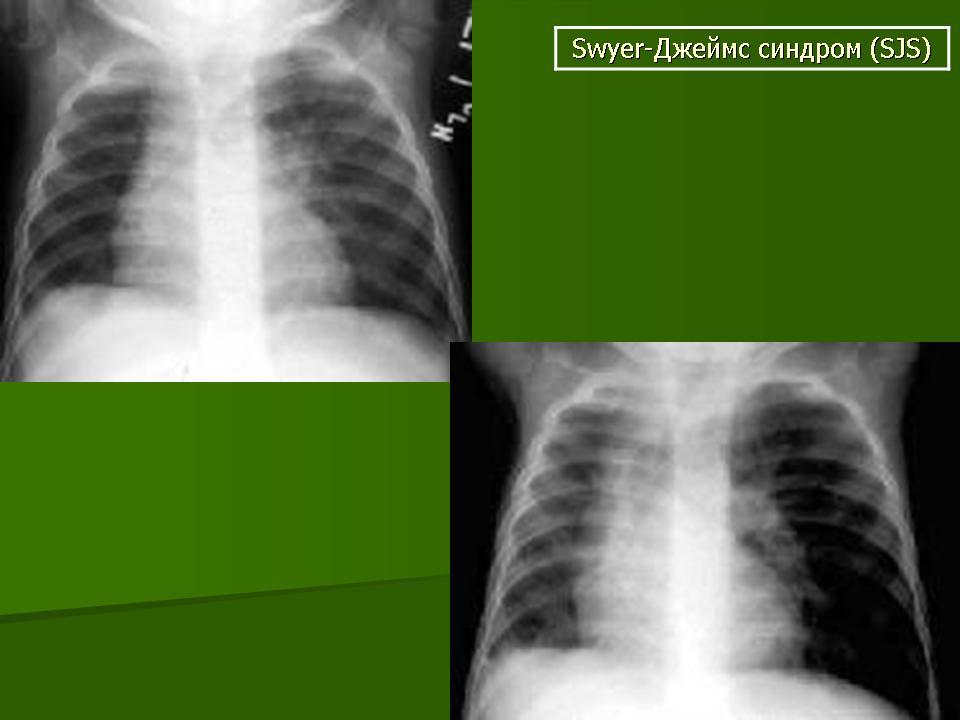 Синдром Суайра-Джеймса фото