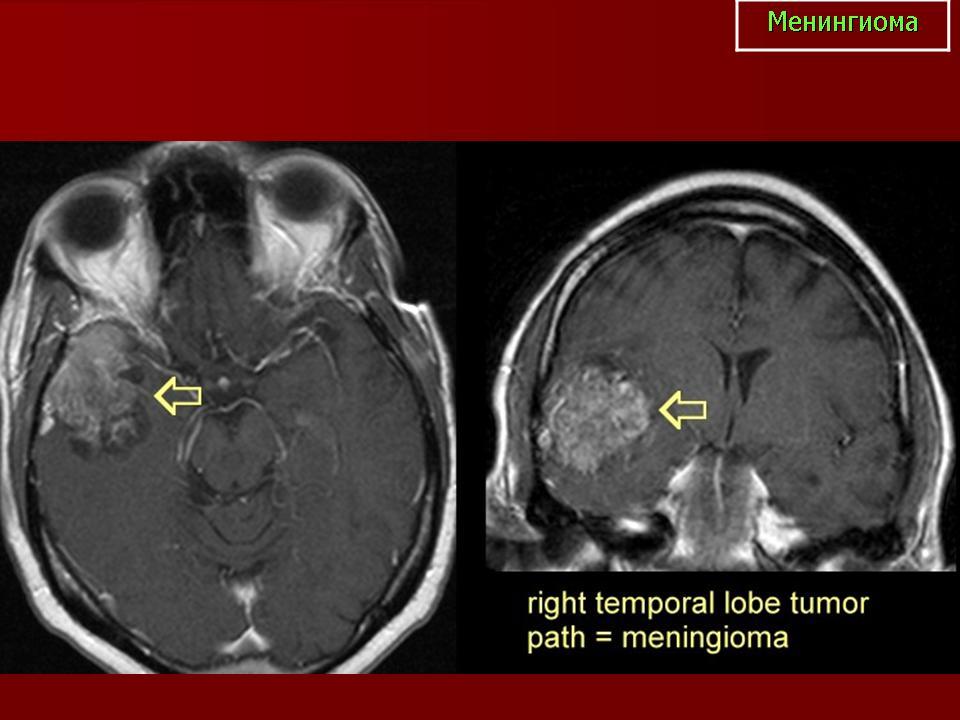Инфратенториальные опухоли головного мозга у детей