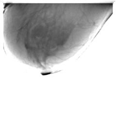 2. Правая молочная железа - боковая проекция.