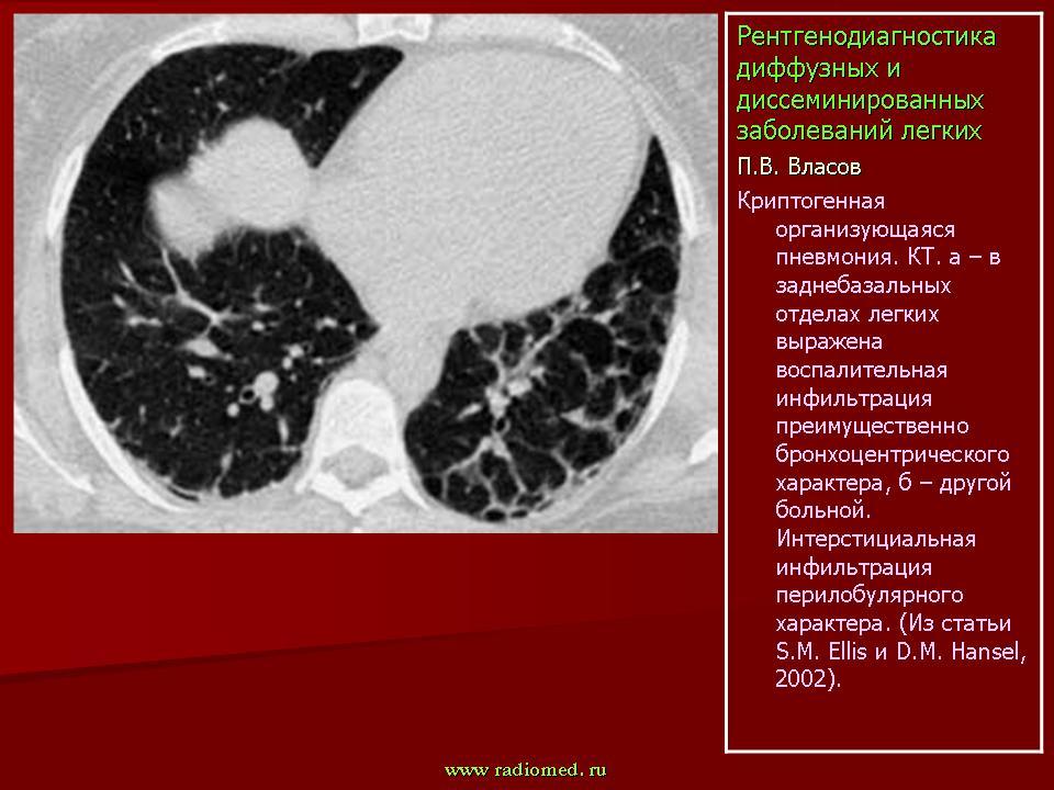 Диффузные заболевания легких