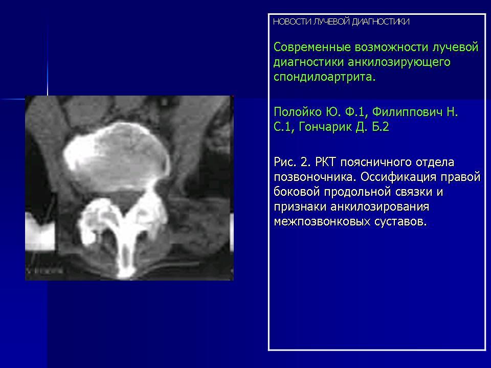 Ркт кресцово подвздошных суставов восполение сустава коленного сустава