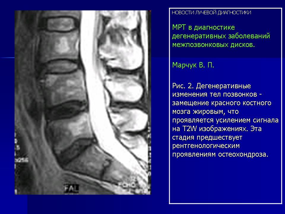 Остеохондроз l5 фаза стабилизации что это такое
