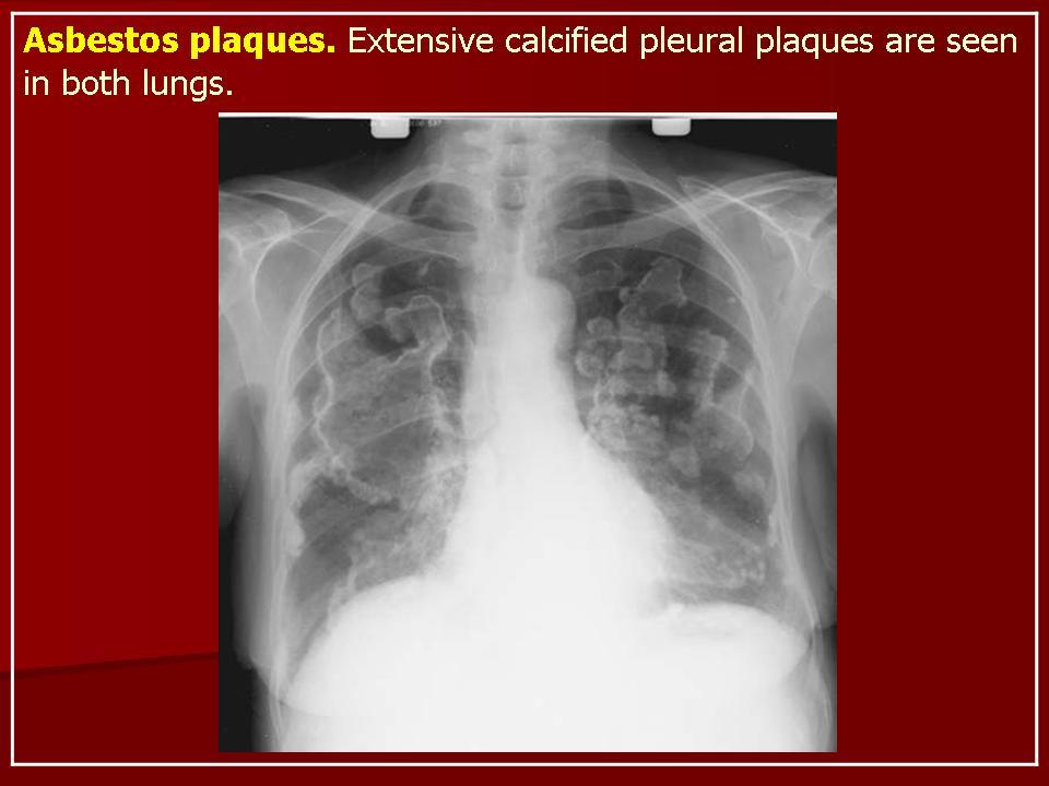развивающееся вследстиве попадения в организм человека асбестовой пыли