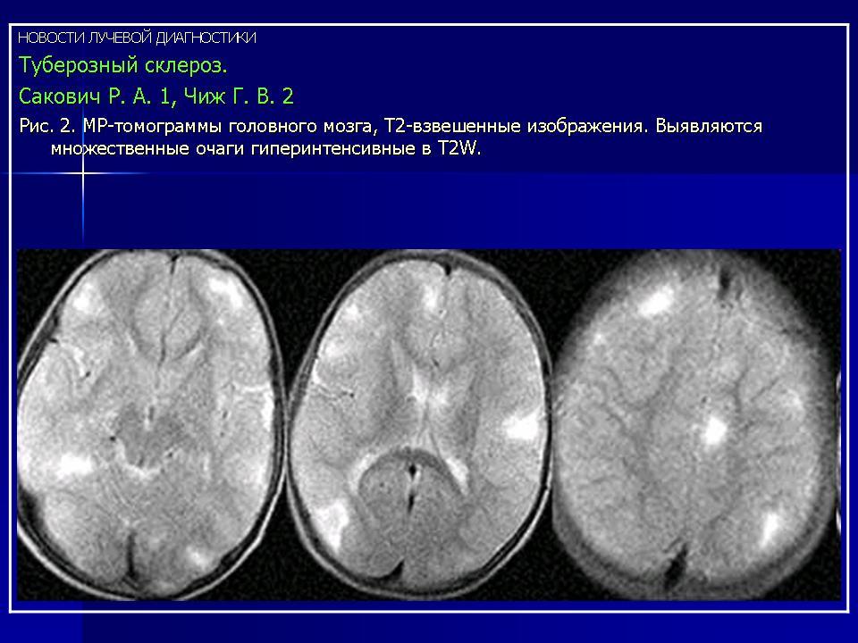 Склеромаляция