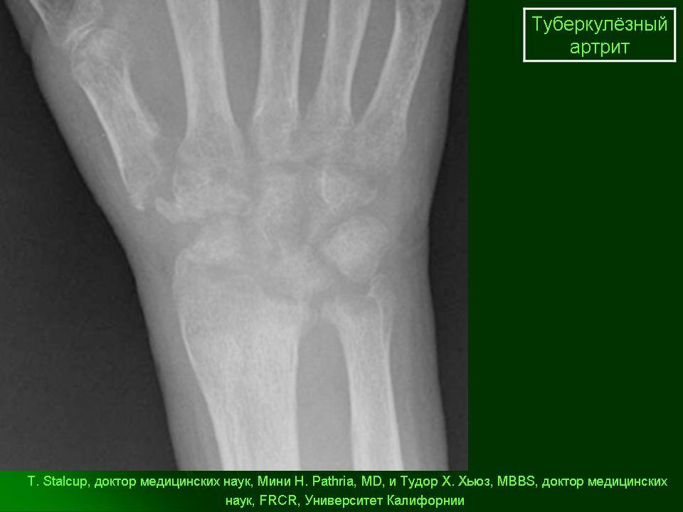 туберкулез костей и суставов форум