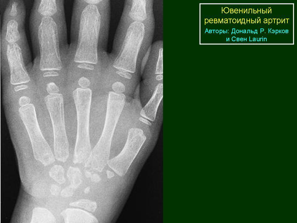 Юношеский ревматоидный артрит