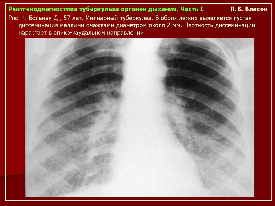 Туберкулид