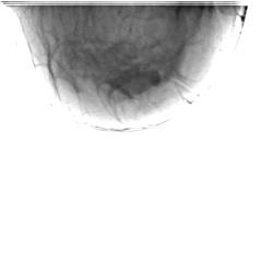 Левая молочная железа. Боковая проекция.