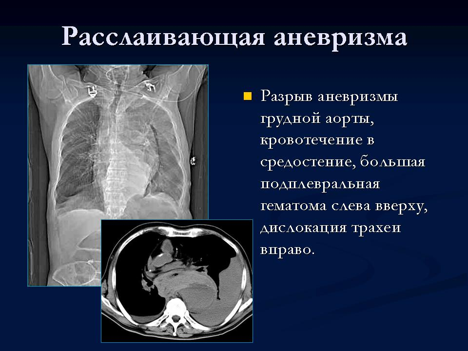 Аневризма нисходящей отдела грудной аорты