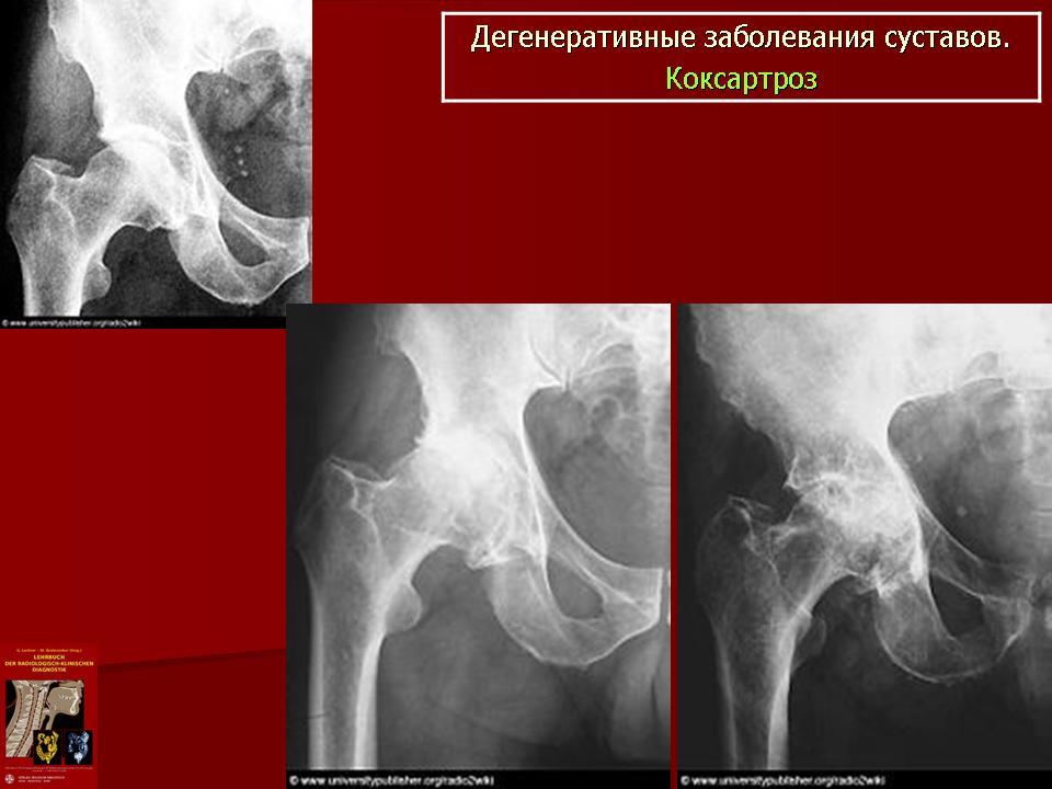Клиническая Рентгеноанатомия Коваль Г Ю