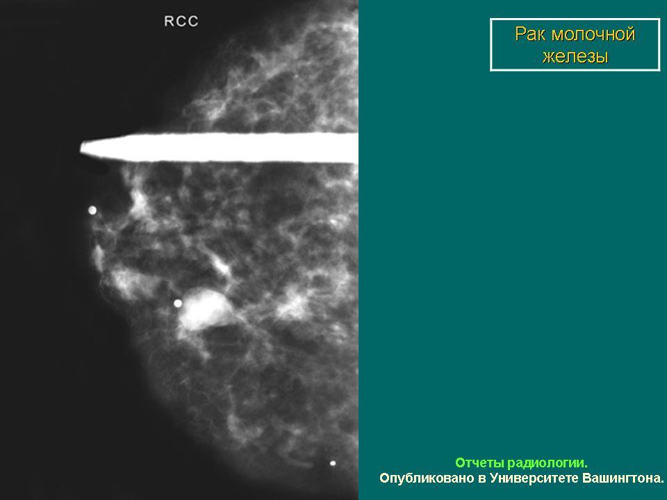 протокол маммографии образец - фото 4