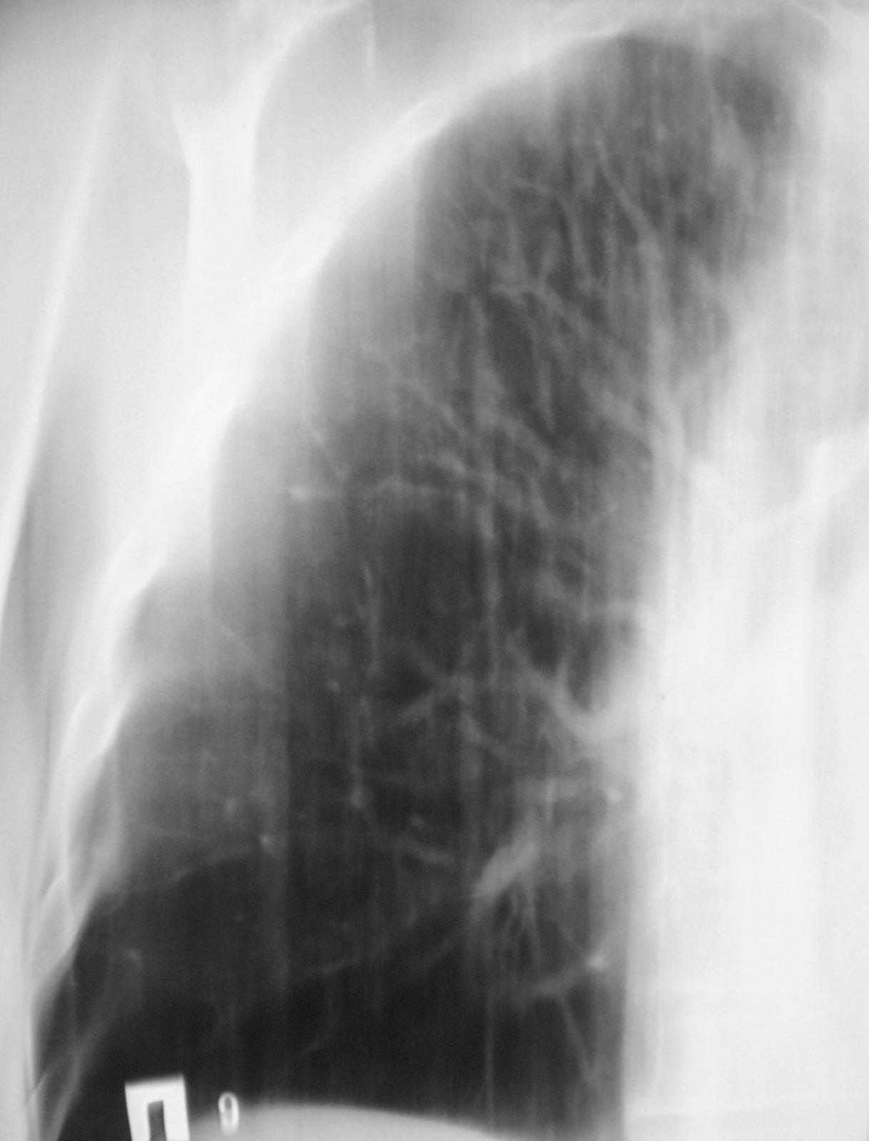 Пневморентгенография