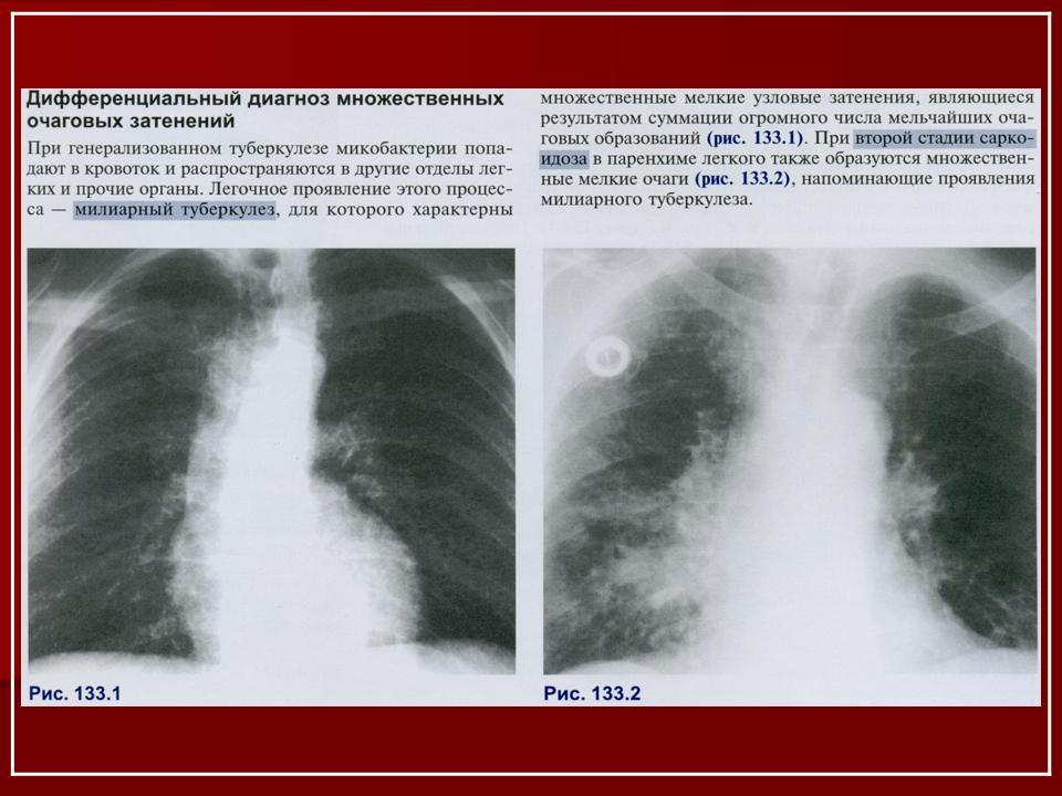 Фтизиатрия реферат на тему туберкулез мужских половых органов