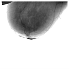 4. Левая молочная железа - боковая проекция.
