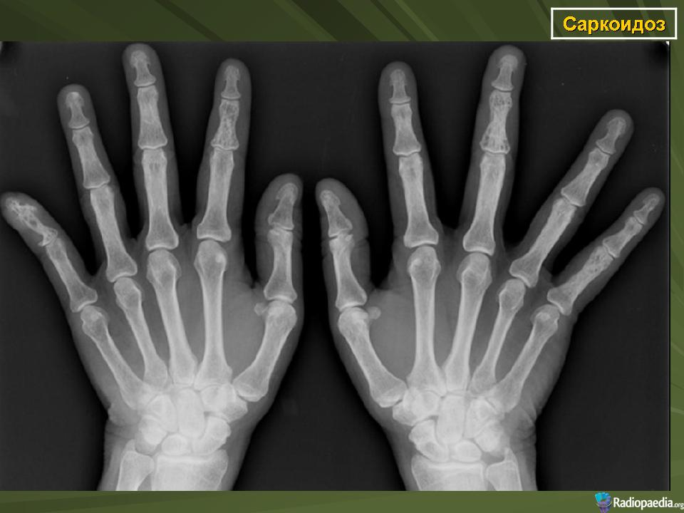 Саркоидоз поражение костей и суставов мрт коленного сустава консультация травматолога