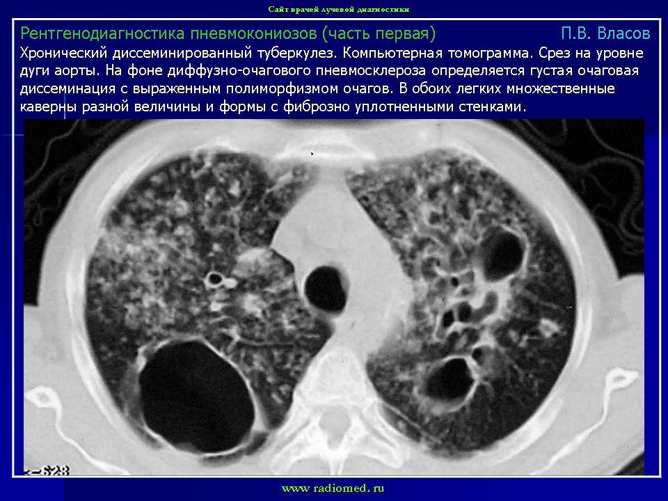 Склероз Диссеминированный