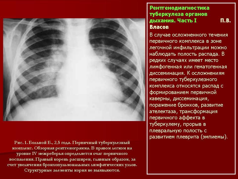 Когда показывает туберкулез флюрография