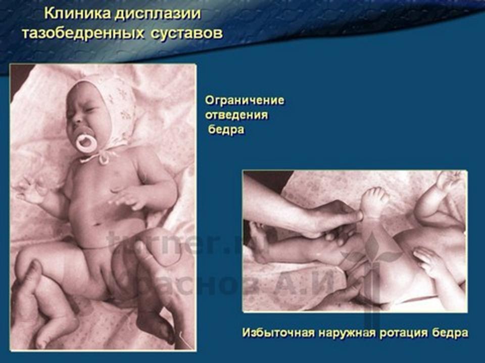 Грудничок дисплазия тазобедренного сустава