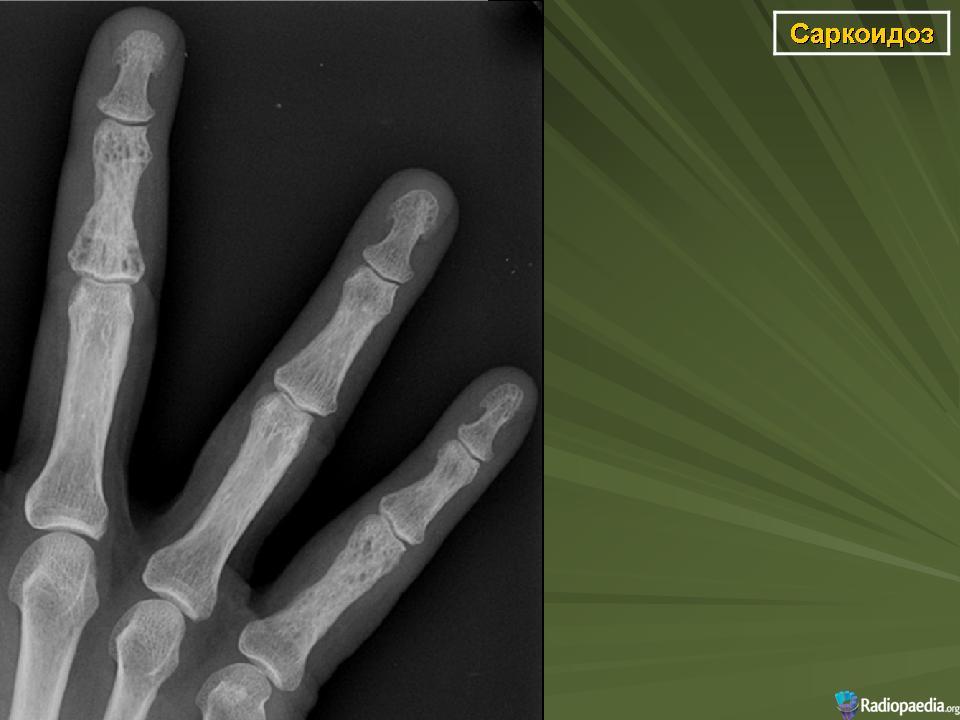 ушиб сустава пальца руки симптомы