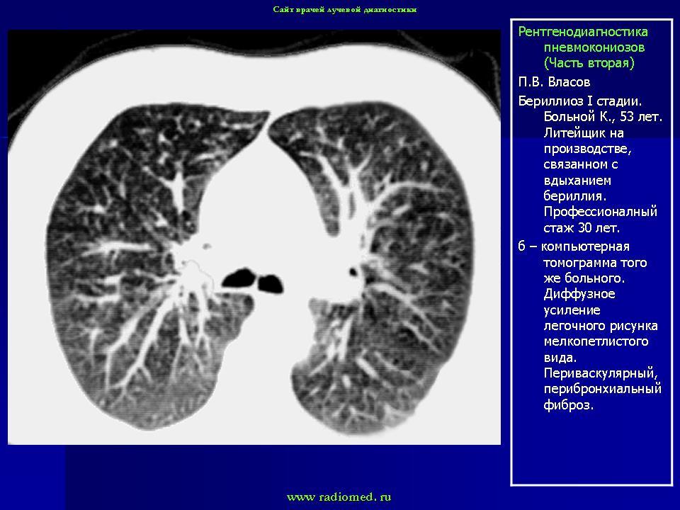 развивающееся вследстиве попадения в организм человека асбестовой пыли фото