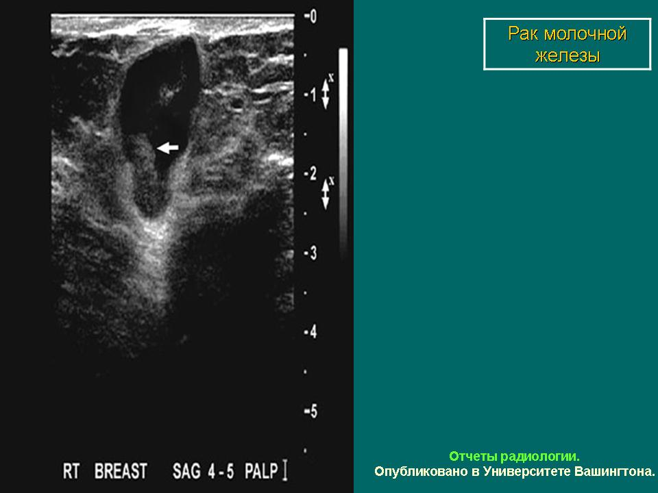 протокол маммографии образец - фото 8