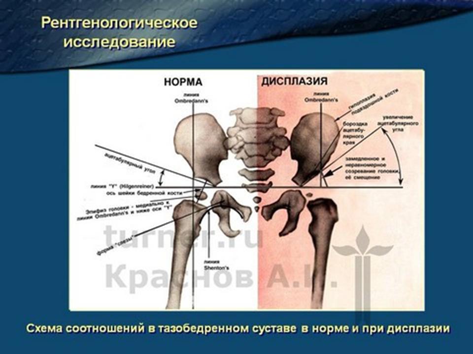 Дисплазия развития тазобедренного сустава