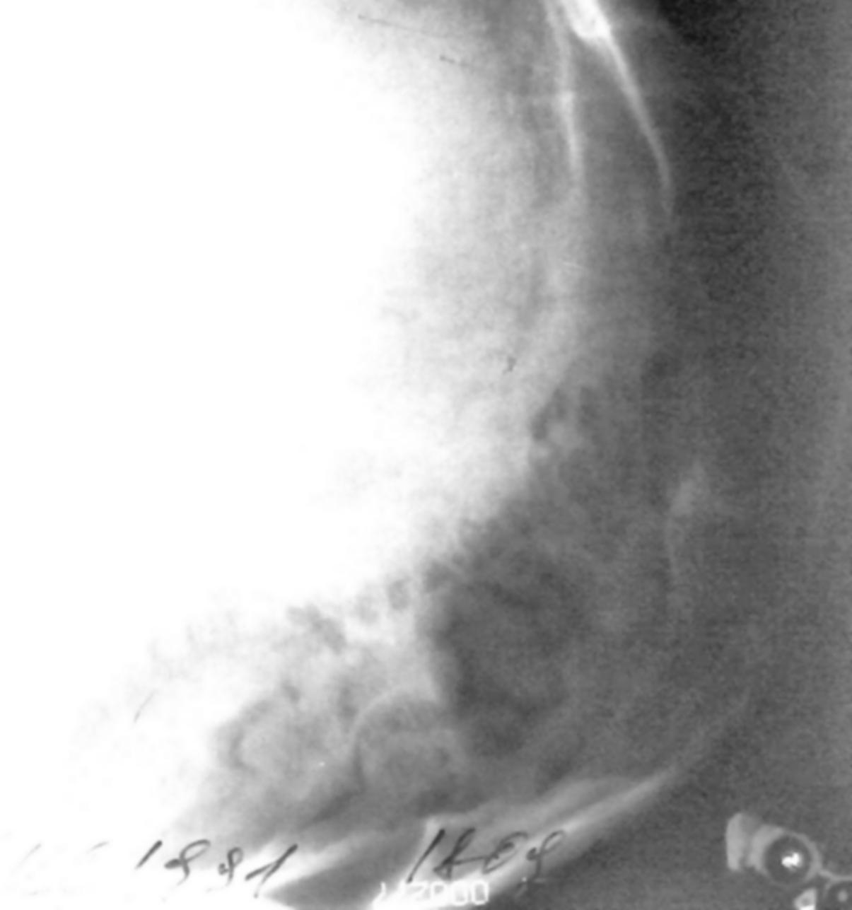 Цефалоцеле