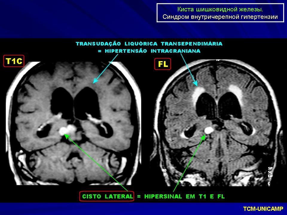 Киста головного мозга что это и как это лечить