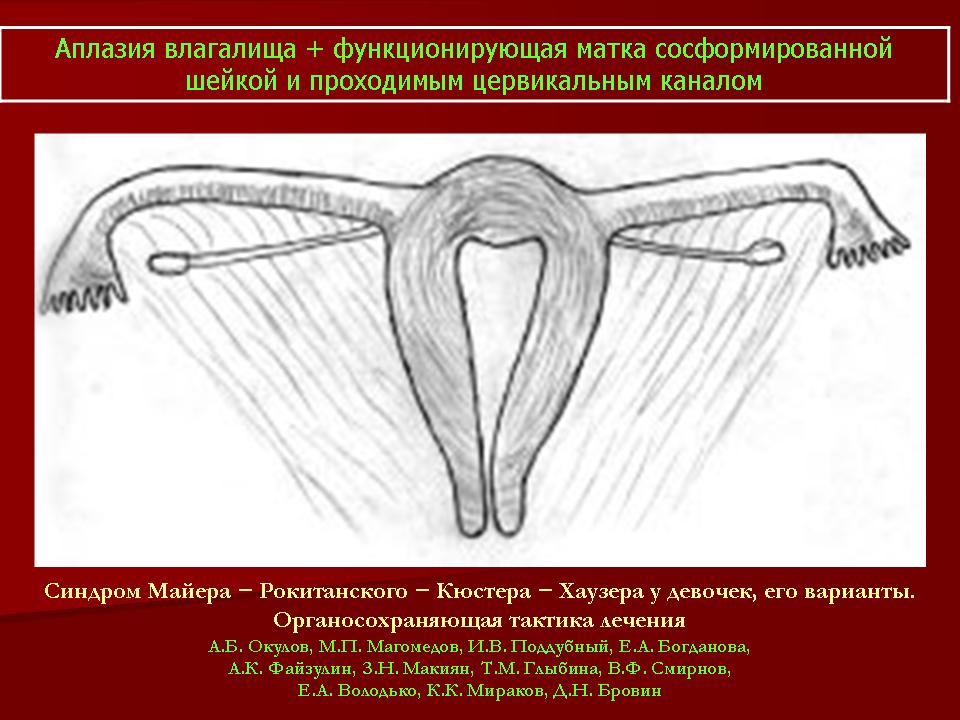 anomalii-razvitiya-matki-vlagalisha