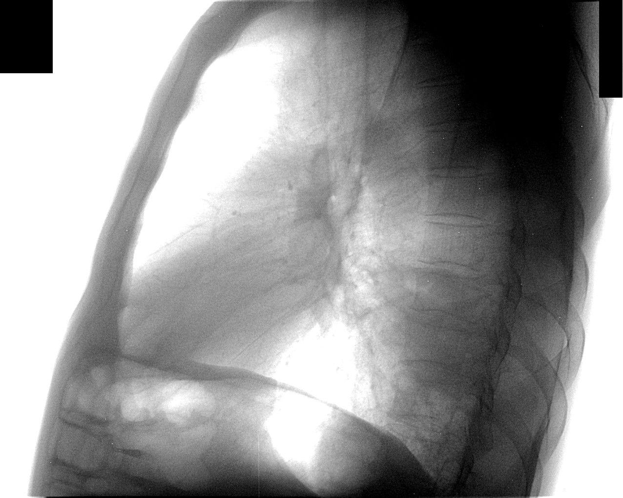 пневмония s6 схема