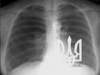 doktor-rentgen аватар