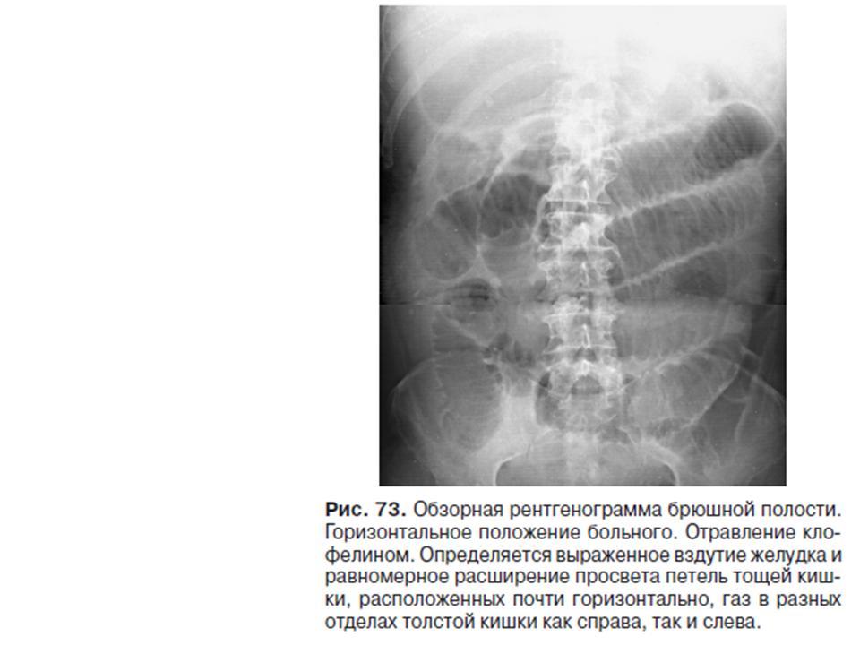 Скачать книги по рентгенологии через торрент