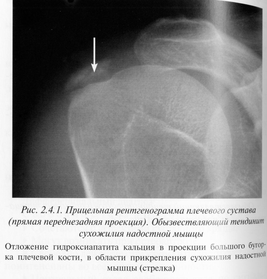 Обызвествляющий бурсит плечевого сустава поражение мелких суставов стоп лечим