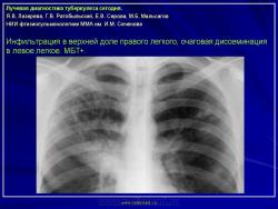 Лучевая диагностика туберкулеза реферат 9009