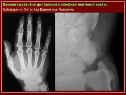 Варианты и аномалии скелета верхних конечностей