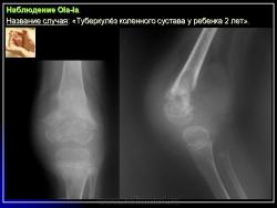 Туберкулез костей и суставов классификация воспаление суставов после переохлаждения