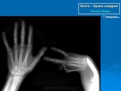 Синдром лермитта остеохондроз 62