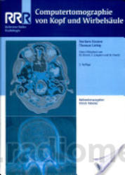 psoriasis differential diagnosis