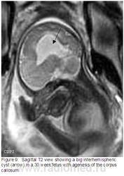 расширение задних рогов боков желудочка: