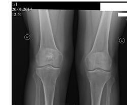 Боли в коленных суставах народные средства