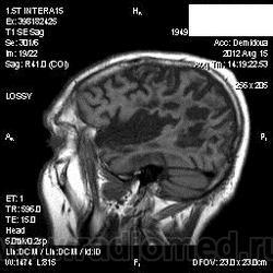 Лечение атрофии коры головного мозга в результате алкоголизма кодирование от алкоголизма зао москва