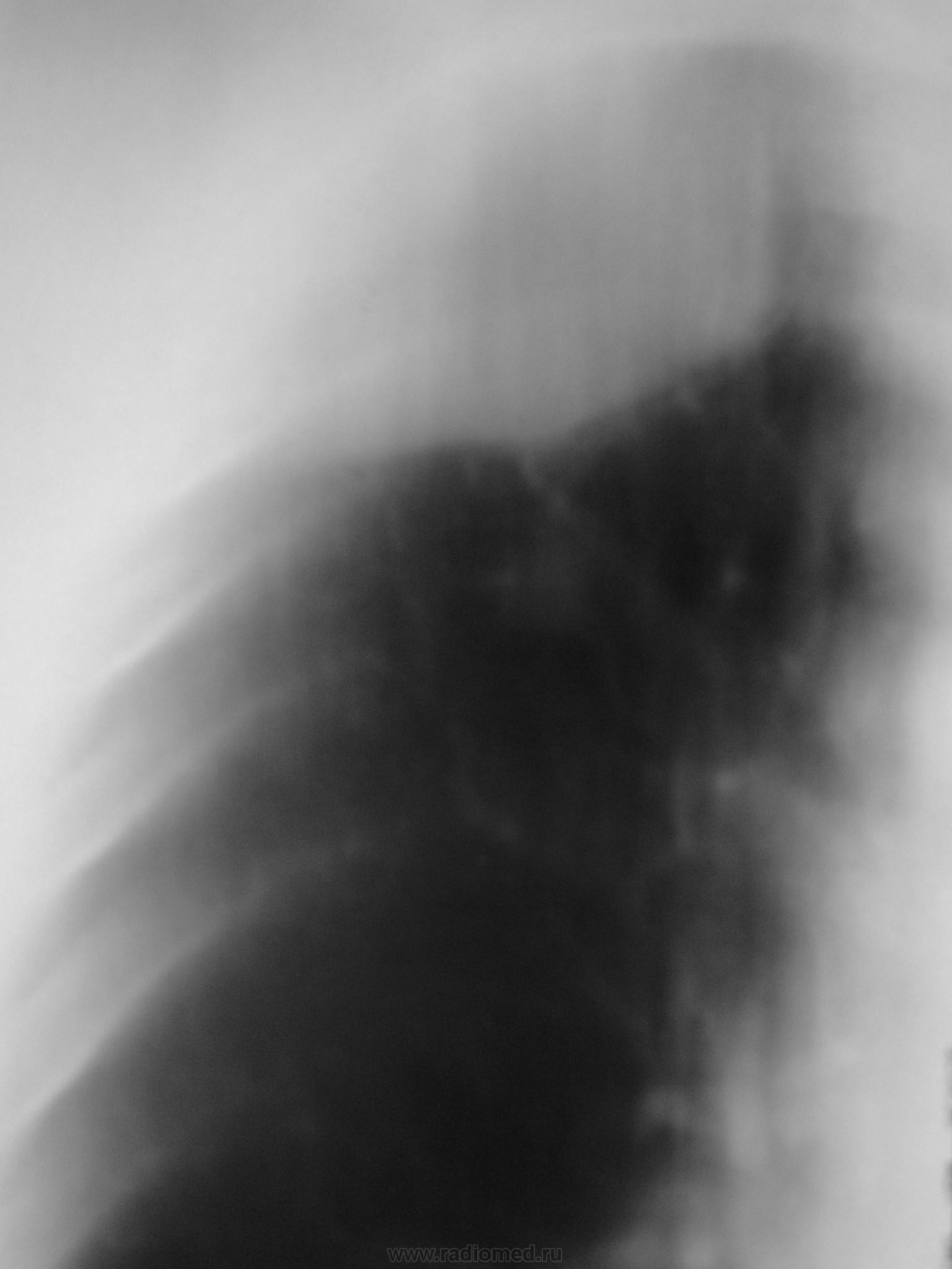 Синдром Пэнкоста фото
