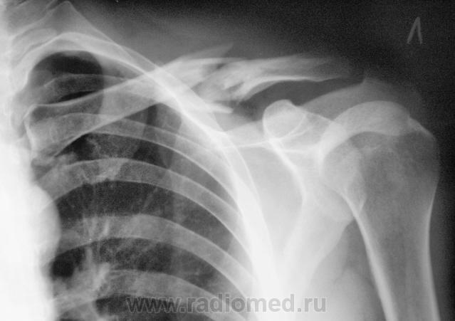 народе костная мозоль ключицы фото травм один раз