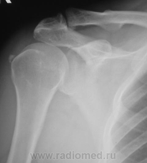 Пациентка направлена на рентгенографию плечевого сустава ...