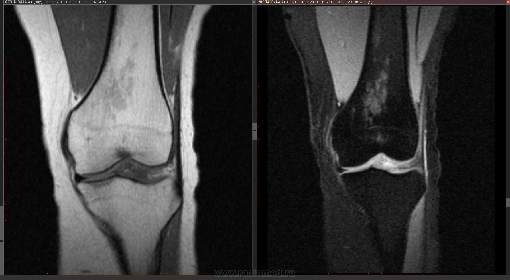 Отек костного мозга коленного сустава нсп артроз коленного сустава